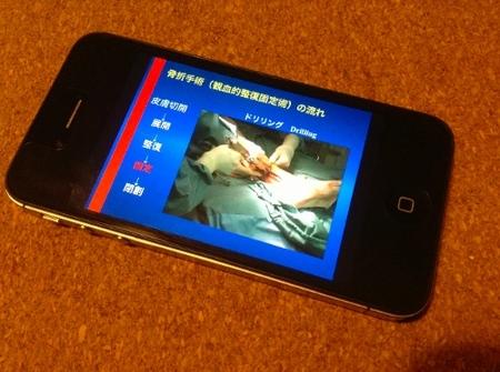骨折手術の説明プレゼンスライド|看護の仕事にもスマートフォンは便利