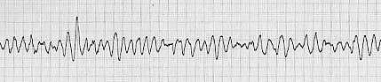 心室細動(Vf)時のモニタ心電図波形